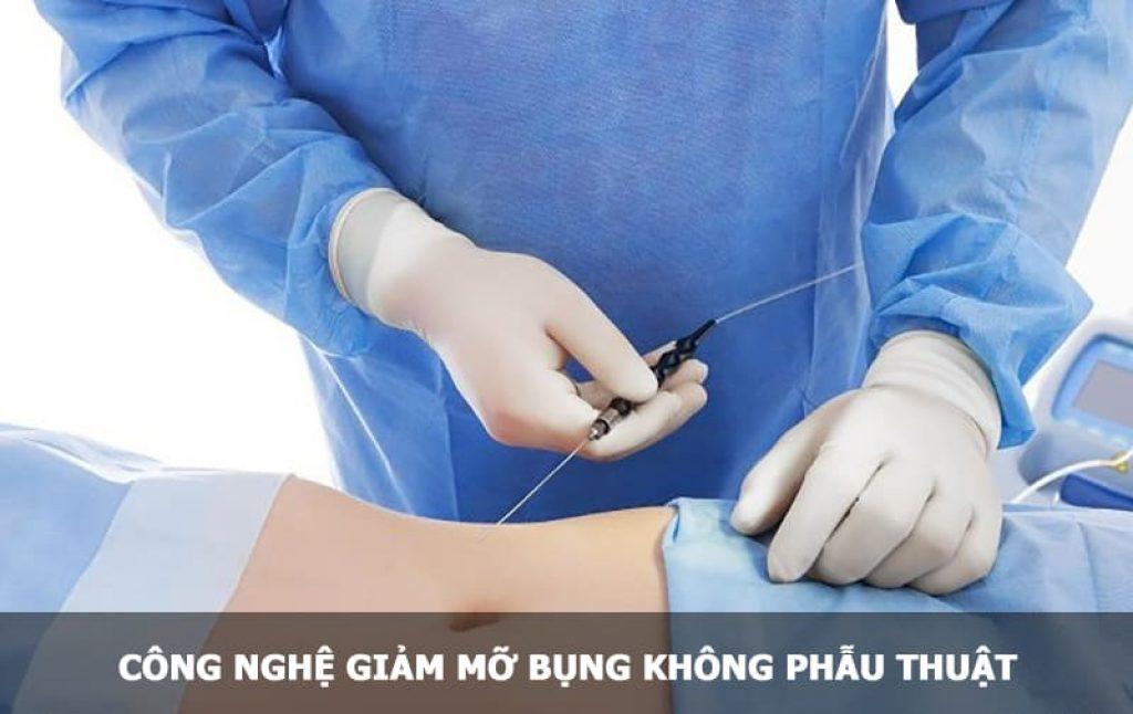 giảm mỡ bụng không phẫu thuật